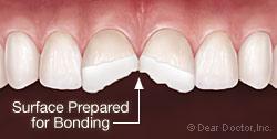 bonding1-2(1)