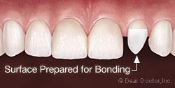 bonding2-2(1)
